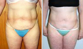 48 yo with three c-section deliveries, shown before and more than 3 years after abdominoplasty.