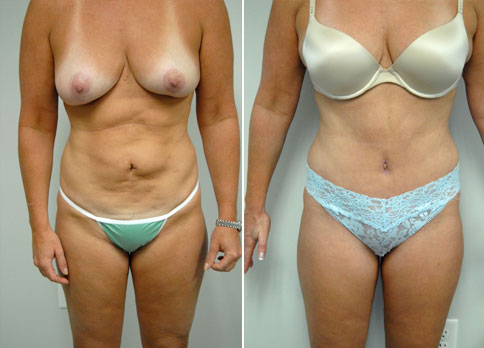 """A 45 yo woman is shown before and 6 weeks after an abdominoplasty. Her case was made more difficult by having had liposuction of her stomach 10 years previously by a non-plastic surgeon. This did not properly address the looseness of skin and muscle following her babies. She felt that this had made the appearance of her abdomen worse. She had a bulge of fat in her mid abdomen following the liposuction but the majority of the irregular """"cellulite"""" appearance following the liposuction was in her lower abdomen and was able to be corrected with her abdominoplasty, which tightened the skin and muscles which had been loosened by her pregnancies. The fat bulge was also corrected at the same time. This is fairly typical of cases that I see where the diagnosis of loose skin and loose abdominal muscles from pregnancy was not properly made before her initial surgery. The scar from her abdominoplasty is covered by her underwear. The scar around her umbilicus is at its most noticeable at this, her 6 week visit. These scars typically fade over the next 2 years."""