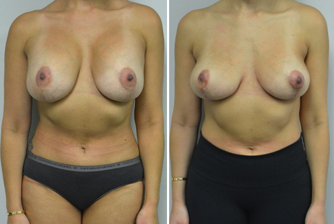 """A woman in her mid 30's who describes herself as a 32 DDD. She had breast implants and a breast lift in Texas in 2011 with 375 cc silicone implants. She feels that she is too large, and does not like the superior fullness in her upper breasts from the implants. Her nipples are properly positioned at 21 1/2 cm from the sternal notch, but she has an increased distance from the nipple to the breast fold. There is always a worry about the blood supply to the nipple when a patient has had previous surgery in this area, so not having to move the nipples is a relief. She had an inverted T mastopexy using her previous scars,, along with removal of her implants. She is shown again, 2 months after surgery. She had enough breast volume remaining to be pleased with her """"C""""cup breast after surgery. Her scars have also been improved slightly, and will continue to fade over the next 2 years. The imprints on her skin are from the silicone pads that we are having her wear after the surgery to improve her scars. Our patient is seen again, now 5 months after surgery. Her scars continue to fade with the silicone pads, and the breasts are """"settling in"""" to their new shape."""