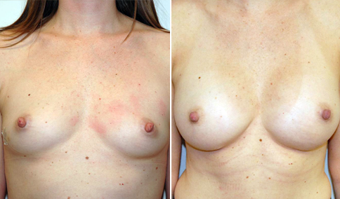 A 36 year old woman who is shown before and 1 year after bilateral partial subpectoral placement of smooth 360cc silicone gel moderate profile implants placed through an infra-mammary crease incision.