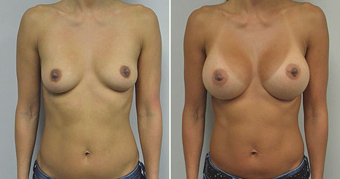 "An Asian professional in her early 40's. Mother of one. Now shown 14 months after bilateral partial sub pectoral breast augmentation with 375 cc round smooth silicone gel moderate profile plus implants placed through an inframammary (breast fold) incision in a partial sub pectoral (below the muscle) location. She is 5'4"" and 118 lbs. An Asian professional in her early 40's. Mother of one. Initially shown 14 months after bilateral partial sub pectoral breast augmentation with 375 cc round smooth silicone gel moderate profile plus implants placed through an inframammary (breast fold) incision in a partial sub pectoral (below the muscle) location. She is 5'4"" and 118 lbs. It is said that 90+% of women after breast augmentation wish that they had ""gone larger"" but that is not always the case. Some women wish to downsize. This woman initially selected the 375 cc implant after discussions and sizing in the office. She was ok with the look in clothing, but always felt a little self-concious in a bathing suit. Then her liftestyle changed and she began to spend more time at the gym. The tight gym clothes accentuated her breasts to the point that she felt that they were too full. She decided after 2 1/2 years to return to the operating room and down-size to a 275 cc moderate profile plus round smooth silicone gel implant. Her original incision at the breast fold was used, and I tightened her lower pocket by performing an excision of the breast capsule in the lower portion and anchoring it to the periosteum (covering) of her rib (this is called a capsulorrhaphy). The ""pocket"" that the implant was in would be too large for the new implant otherwise. She is now seen 7 1/2 months since this second procedure. Her breasts are fuller than before her initial surgery but now seem absolutely natural to her in her workout clothes and in a bathing suit. It is a cautionary tale, that even with careful discussion of the tradeoffs and sizing in the office, not everyone ""wishes that they had gone larger"""