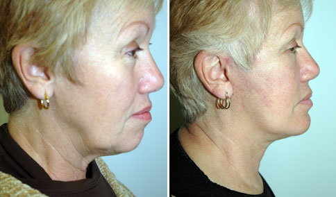 65 yo woman shown before and 4 months after short-scar facelift with micro-fat grafting to lower eyelids and naso-labial creases, bilateral lower lid blepharoplasty and chin implant.