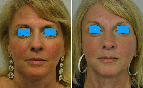 "A woman in her early 50's who does not like the ""bunny lines"" on the side of her nose. She is also bothered by the horizontal line at the top of the nose (from the procerus muscle) and the forehead lines. In addition, she has a small ""hump"" and irregularity of her nose and was considering a rhinoplasty. She is shown before and after 30 units of Botox to the forehead/frown lines/""bunny lines"" and procerus muscle. I have camouflaged the irregularities of her nose with 1/2 cc of Restylane- a non surgical rhinoplasty!. She is shown inunretouched photos before and after. The Botox typically is repeated at 4-6 months. The Restylane will usually last a year or longer."
