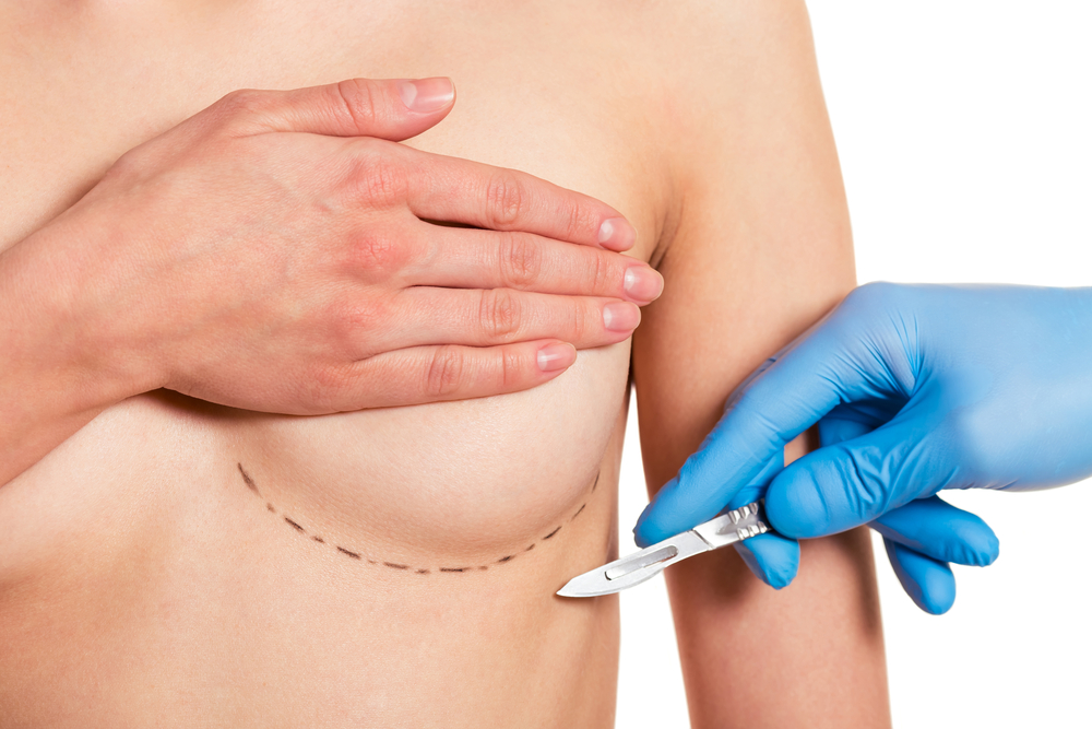 Four Need to Knows Before Breast Augmentation