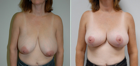 breast lift before and after boston
