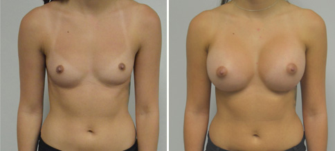 breast augmentation before and after boston