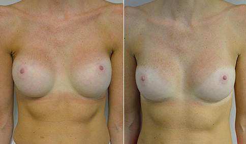 Breast implant revision patient