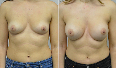 breast augmentation with ideal implants