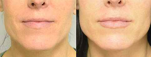Fillers Before and After Photo