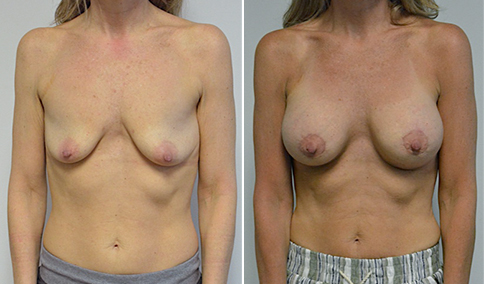 Mastopexy and Breast Augmentation Patient before and after