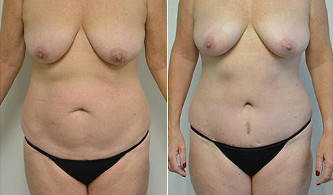 tummy tuck patient before and after
