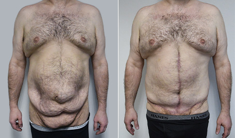 massive weight loss patient
